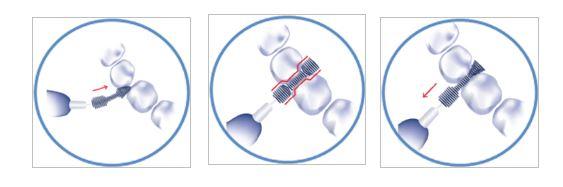 1) Miękka końcówka ułatwia włożenie szczoteczki między zęby. Elastyczny drucik ułatwia manewrowanie między zębami, również przy wyciąganiu szczoteczki. 2) Kiedy szczoteczka jest między zębami, końcówka szczoteczki wychodzi z drugiej strony, a krótsze włosie czyści ścianki zęba.  3) Przy wyjmowaniu szczoteczki dłuższe włosie składa się (na kształt choinki), dzięki czemu łatwiej usunąć szczoteczkę.